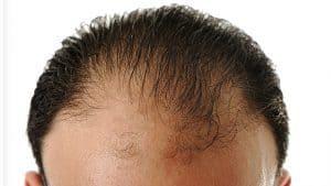 alopecia, queda de cabelo