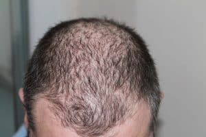 queda do cabelo